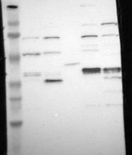 NBP1-85656 - UCHL5