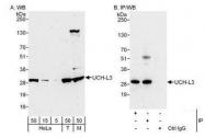 NBP1-49711 - UCHL3