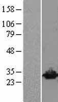 NBL1-17576 - UCHL3 Lysate
