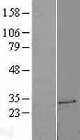 NBL1-17580 - UCK2 Lysate