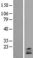 NBL1-17581 - UCN2 Lysate