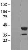 NBL1-17582 - UCP2 Lysate