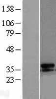 NBL1-17583 - UCP3 Lysate