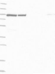 NBP1-90692 - KIAA0776 / UFL1