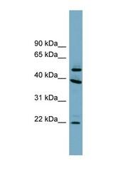NBP1-70740 - UFSP2 / C4orf20
