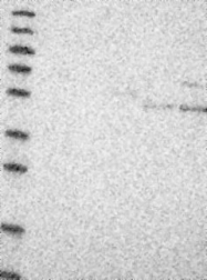 NBP1-83376 - UGCG / GLCT-1