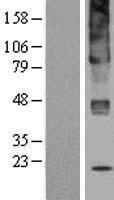 NBL1-17592 - UGCG Lysate