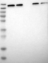 NBP1-81651 - UGCGL1 / RUGT