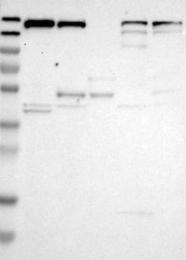 NBP1-81652 - UGCGL1 / RUGT