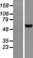 NBL1-17596 - UGP2 Lysate