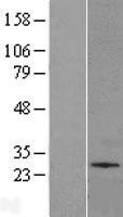 NBL1-16116 - UGT Lysate