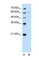 NBP1-69412 - UGT1A4