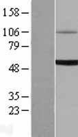 NBL1-17598 - UGT1A6 Lysate