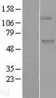 NBL1-17600 - UGT1A9 Lysate
