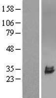 NBL1-17606 - ULBP2 Lysate