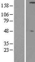 NBL1-17607 - ULK1 Lysate