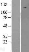 NBL1-17608 - ULK2 Lysate