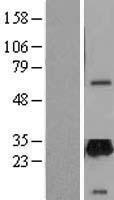 NBL1-17610 - UNC119 Lysate