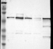 NBP1-83135 - UPF3B / RENT3B