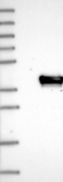 NBP1-80646 - Uridine phosphorylase 2 (UPP2)