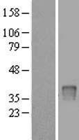 NBL1-17626 - UPP2 Lysate