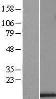 NBL1-17628 - UQCRB Lysate