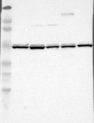 NBP1-85328 - UQCRC1 (Complex III subunit core 1)