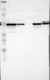 NBP1-85329 - UQCRC1 (Complex III subunit core 1)