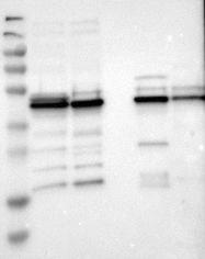NBP1-80861 - UQCRC2 (Complex III subunit Core 2)