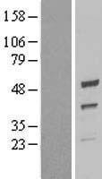 NBL1-17630 - UQCRC2 Lysate