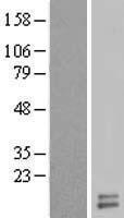 NBL1-17631 - UQCRH Lysate