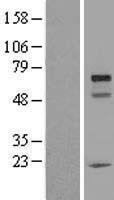 NBL1-08262 - URI Lysate