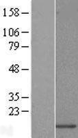 NBL1-17633 - URM1 Lysate