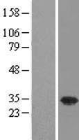 NBL1-17637 - USF1 Lysate
