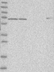 NBP1-89190 - USH1C  / Harmonin