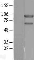 NBL1-17643 - USP10 Lysate