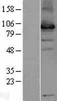 NBL1-17645 - USP13 Lysate