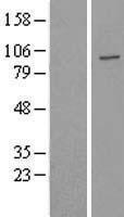 NBL1-17647 - USP16 Lysate