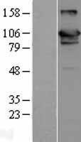 NBL1-17651 - USP20 Lysate