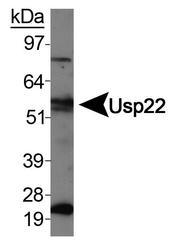 NBP1-49644 - USP22