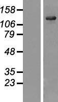 NBL1-17654 - USP25 Lysate