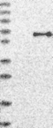 NBP1-81914 - USP30