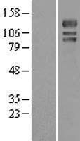 NBL1-17663 - USP4 Lysate
