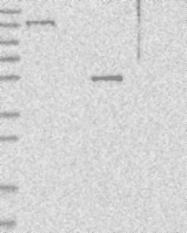NBP1-82039 - USP43
