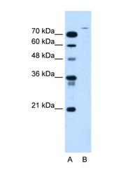 NBP1-59752 - USP48