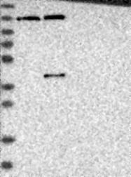 NBP1-83751 - USP48