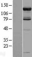NBL1-14090 - USP52 Lysate