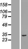 NBL1-17676 - UTP11L Lysate