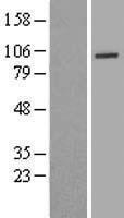 NBL1-17677 - UTP14A Lysate
