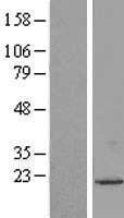 NBL1-17686 - UXT Lysate